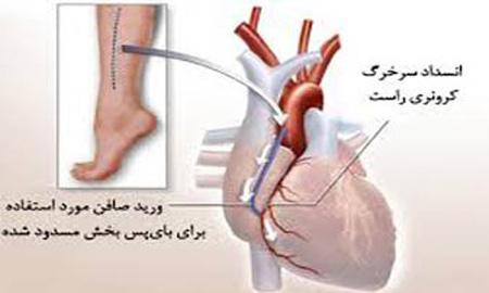 راهنمای تغذیه ای پس از پیوند قلب